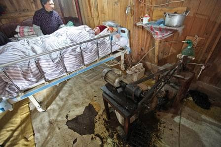 Casal mantém filho vivo bombeando saco ressuscitador 24 horas ao dia 5