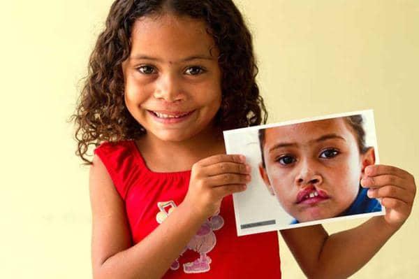 Operação Sorriso devolve auto-estima à crianças com lábio leporino 8