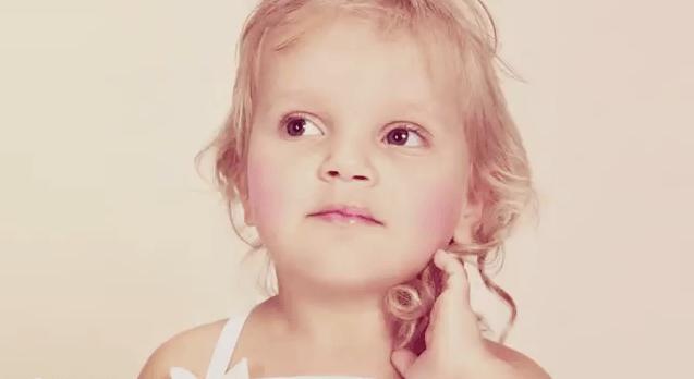 Operação Sorriso devolve auto-estima à crianças com lábio leporino 2