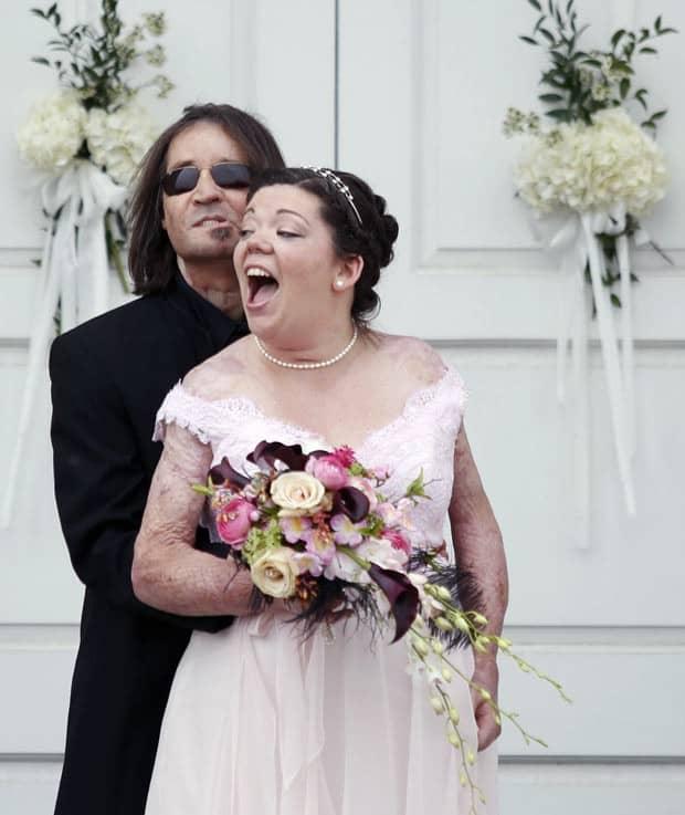 Primeiro americano a fazer transplante completo de rosto se casa 3