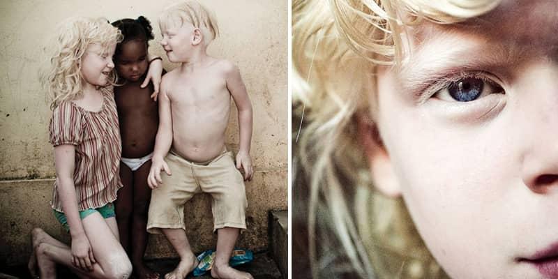 Fotógrafo registra uma família negra com fihos albinos que vivem fugindo do sol 3