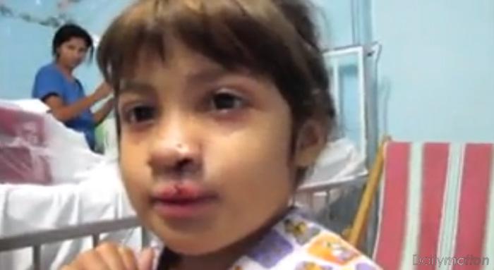 Menina com lábio leporino vê-se ao espelho pela primeira vez depois da operação 1