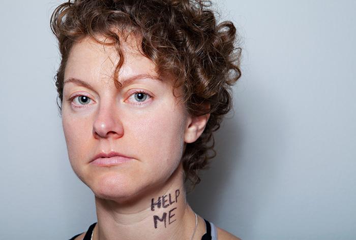 Projeto fotográfico mostra pessoas expondo suas maiores inseguranças 2