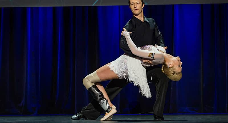 Médico obstinado ajuda bailarina amputada a dançar novamente 1