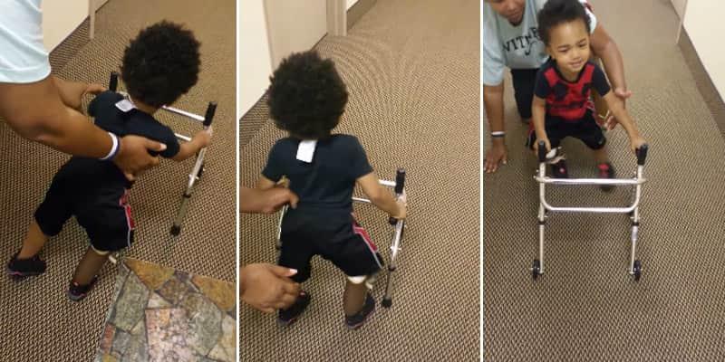 Menino adorável de 2 anos reaprende a andar com uma prótese na perna 1