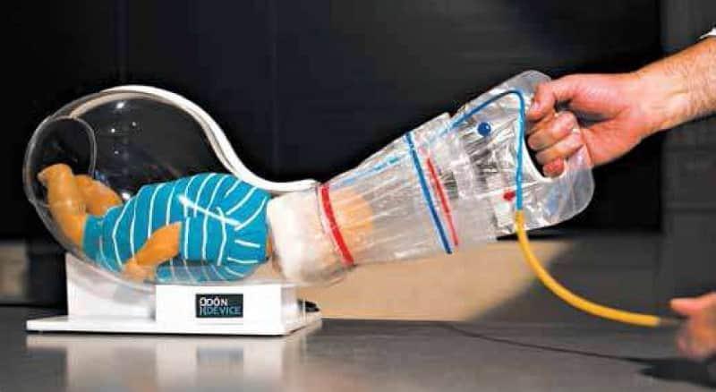Aparelho inventado por mecânico diminui drasticamente os riscos na hora do parto 1