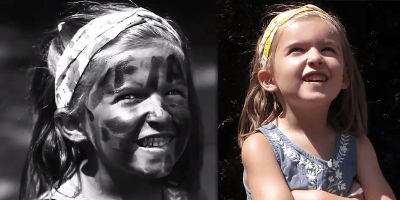 Vídeo mostra como o sol afeta a nossa pele e a importância do filtro solar 1