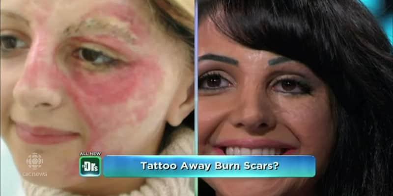 Ela já sofreu com queimaduras, e hoje aplica técnica especial de tatuagem para cobrir marcas de outras vítimas 1