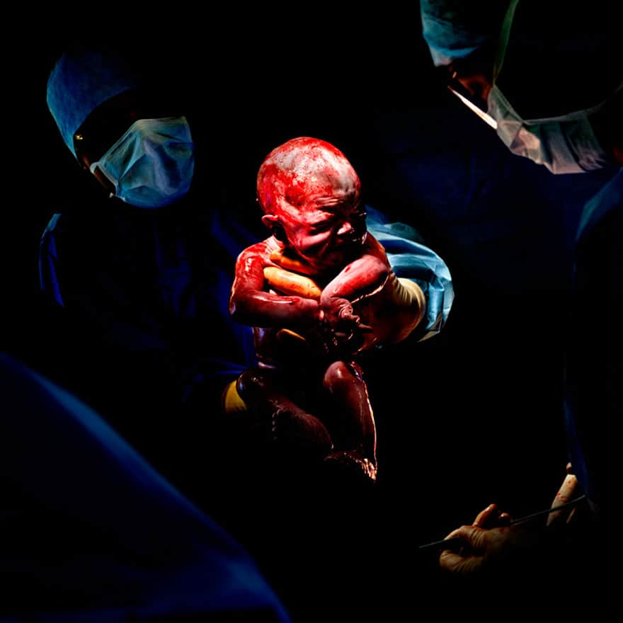 newborn-infant-photos-c-section-cesar-christian-berthelot-10