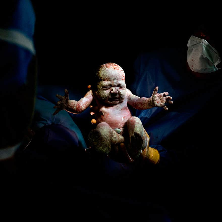 newborn-infant-photos-c-section-cesar-christian-berthelot-8