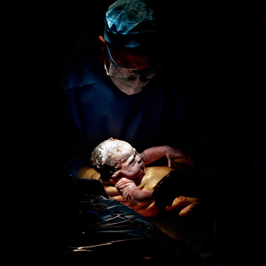 newborn-infant-photos-c-section-cesar-christian-berthelot-9