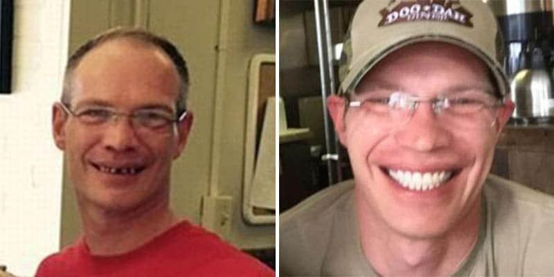 Homem dá US$ 25.000 de gorjeta para garçom arrumar os dentes e ter sua vida transformada 2