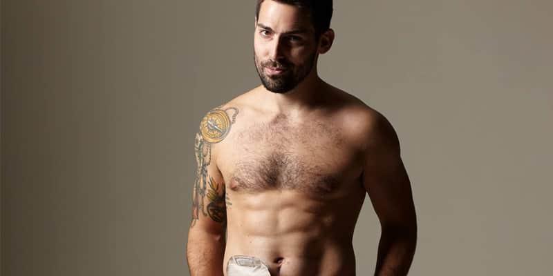 Este jovem posou nu com saco de colostomia para alertar sobre câncer do cólon 2