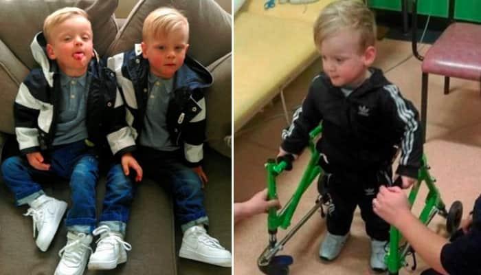 Menino com paralisia cerebral fica em pé pela 1ª vez e sonha em caminhar como o irmão gêmeo 2