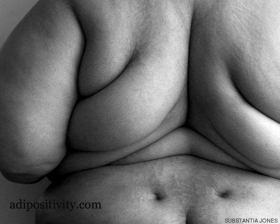 o-obesidade-570a
