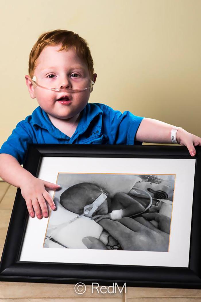 premature-baby-portraits-les-premas-red-methot-15a