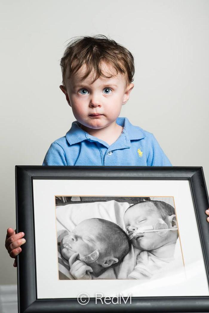 premature-baby-portraits-les-premas-red-methot-17a