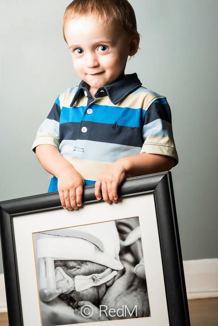 premature-baby-portraits-les-premas-red-methot-4a