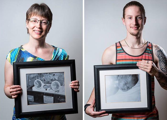 Ensaio mostra o 'antes e depois' de bebês que nasceram prematuros 1