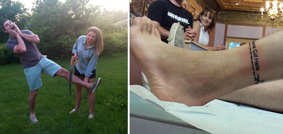 A forma como ele encarou a necessidade de amputar a perna é uma verdadeira lição de vida 1