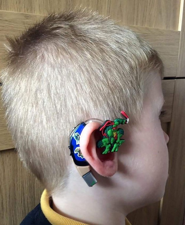 aparelho-auditivo-criativo