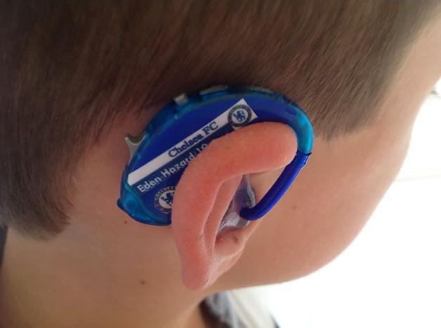 aparelho-auditivo-criativo2