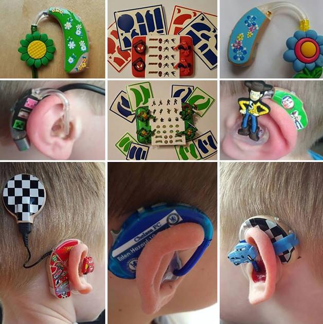 aparelho-auditivo-criativo5