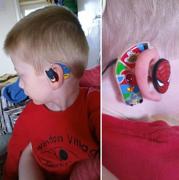 aparelho-auditivo-criativo6