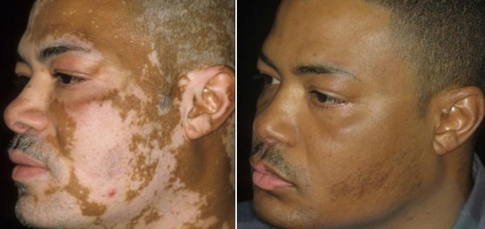 Cubanos desenvolvem cura contra vitiligo em 3 dias 1