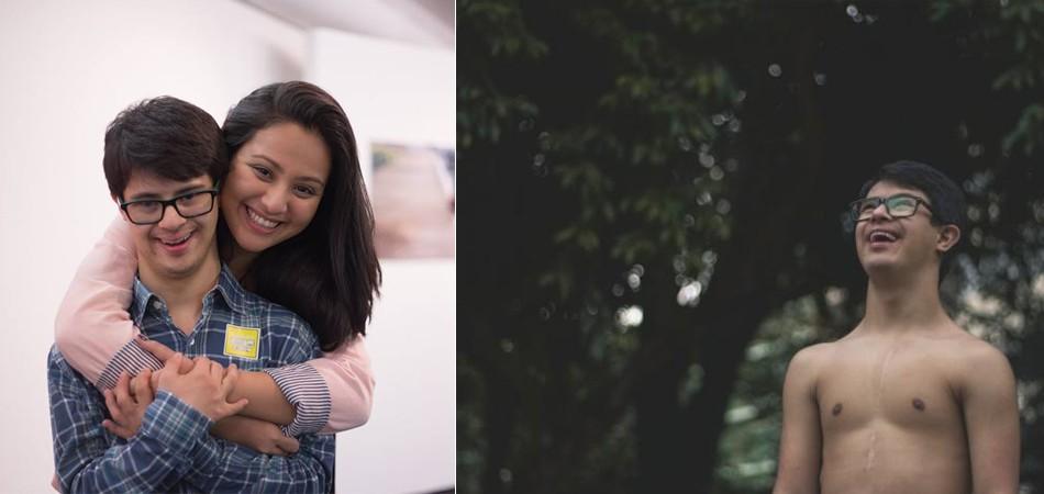 Cineasta faz linda homenagem a irmão com Síndrome de Down 1