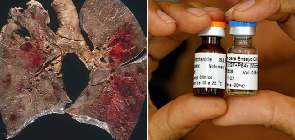 Cuba desenvolve importante vacina contra o câncer de pulmão 2