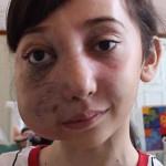 Garota de 11 anos que tem rosto desfigurado dá dicas de beleza no Youtube 5