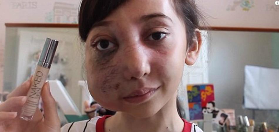 Garota de 11 anos que tem rosto desfigurado dá dicas de beleza no Youtube 1