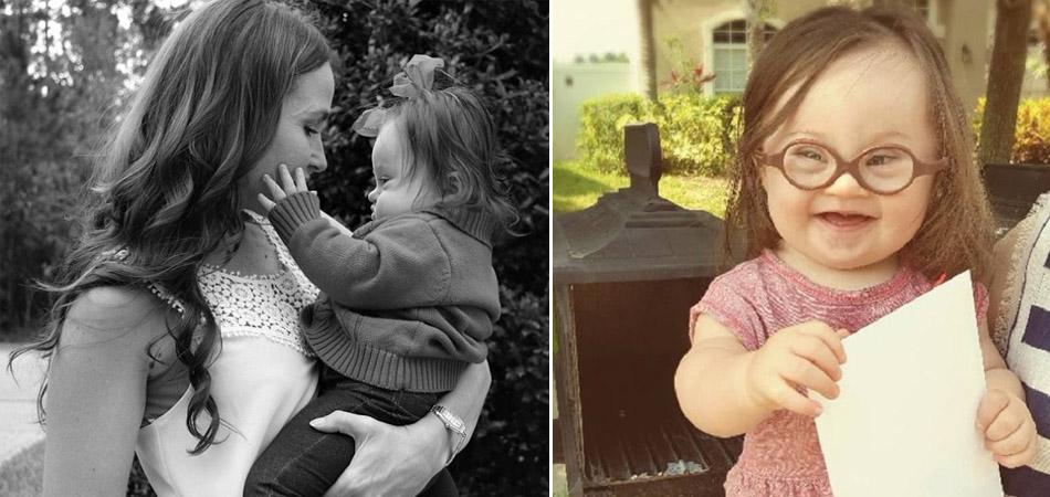 Mãe escreve carta emocionante para médico que sugeriu que abortasse filha com Down 1