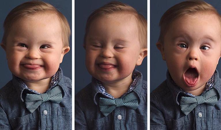 Mãe cria campanha para filho que foi recusado em campanha publicitária por ter Síndrome de Down 2
