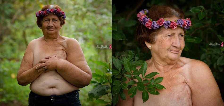 Neta homenageia avó que venceu o câncer de mama com lindo ensaio fotográfico 3