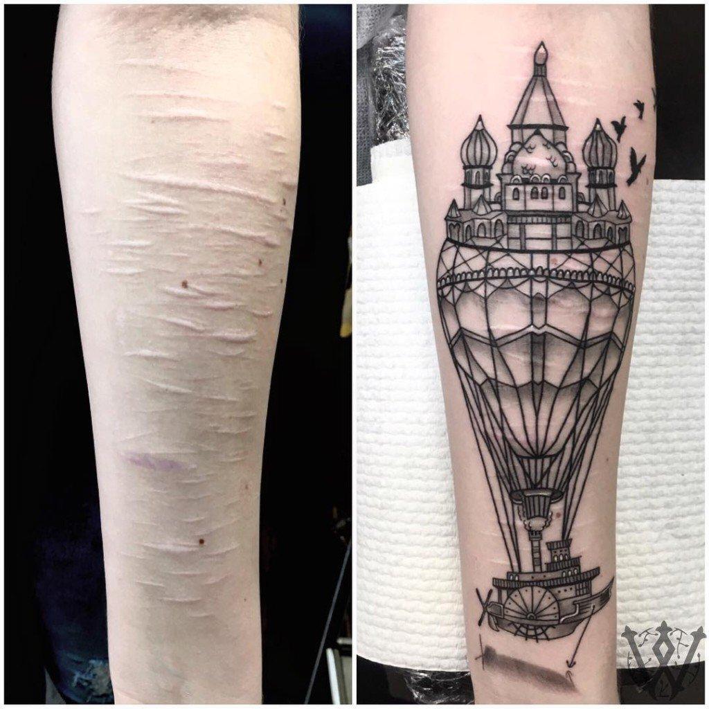 tatuagem_cicatriz-2-1024x1024