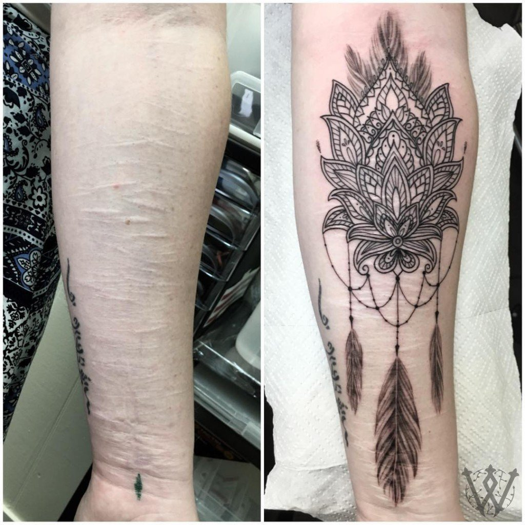 tatuagem_cicatriz-4-1024x1024