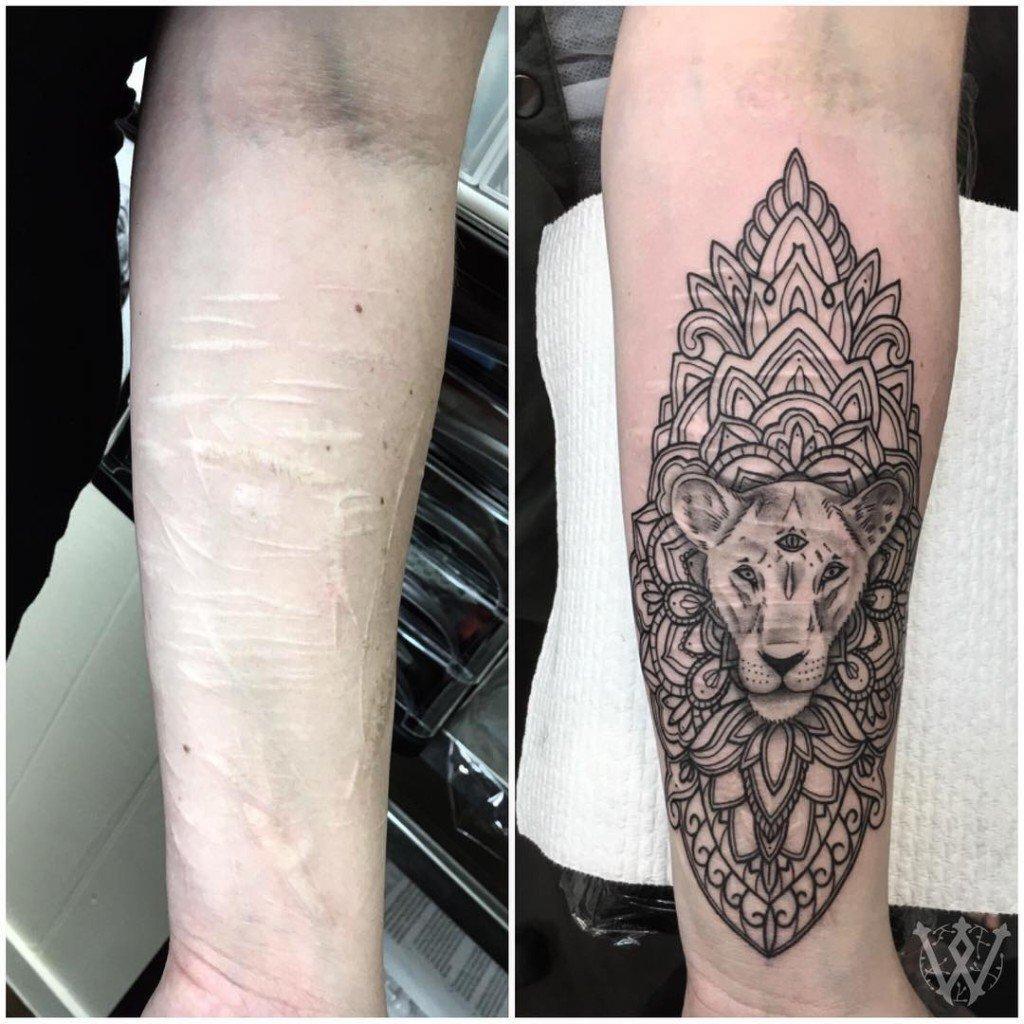 tatuagem_cicatriz-5-1024x1024