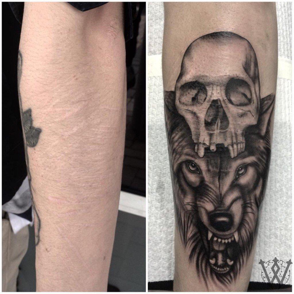 tatuagem_cicatriz-8-1024x1024