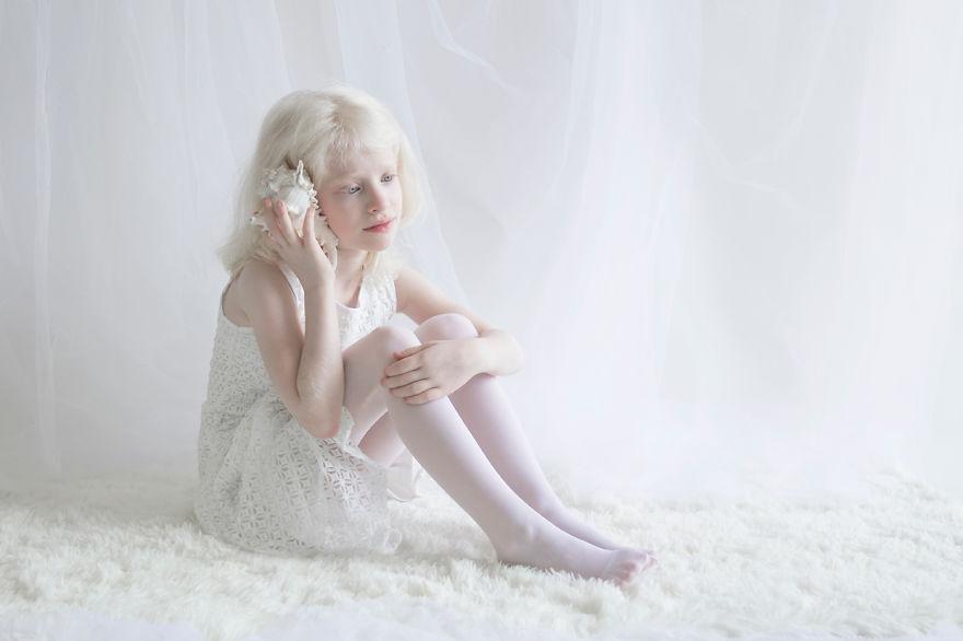 fotografias-de-pessoas-albinas-por-yulia-taits-adi
