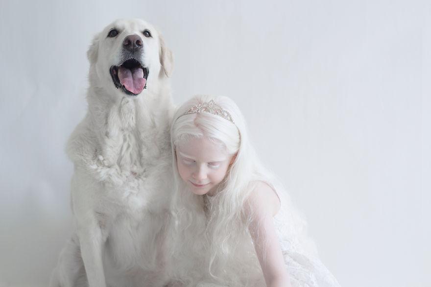 fotografias-de-pessoas-albinas-por-yulia-taits-sahar