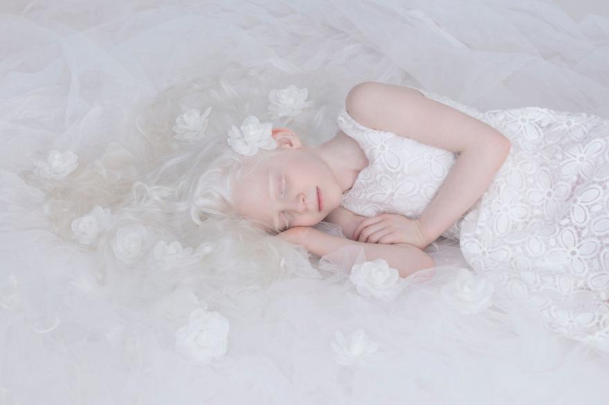 fotografias-de-pessoas-albinas-por-yulia-taits-sahar2