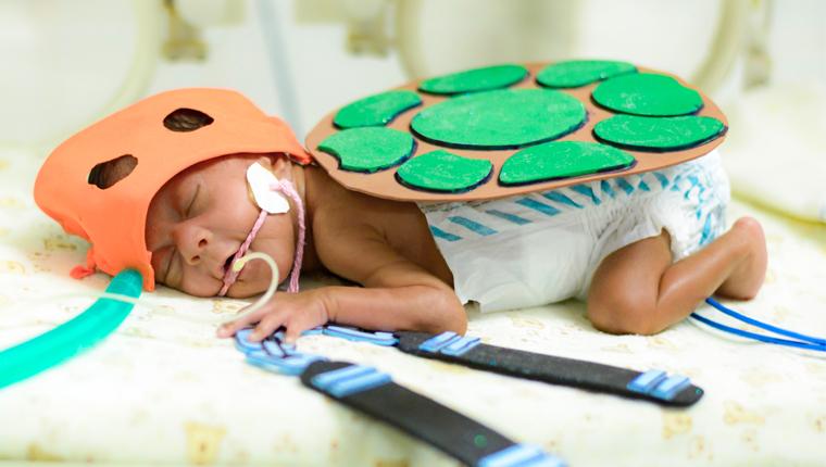 Hospital organiza sessão de fotos com bebês da UTI Neonatal e o resultado é comovente 1