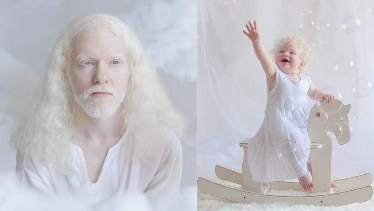 Fotógrafa Russa faz ensaio encantador com pessoas albinas 1