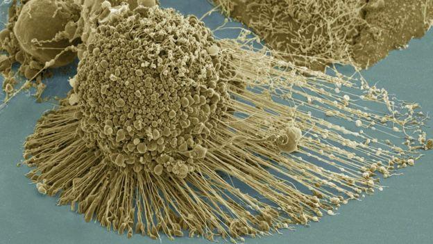 Células de mulher morta há mais de 60 anos já salvaram milhões de vidas 5