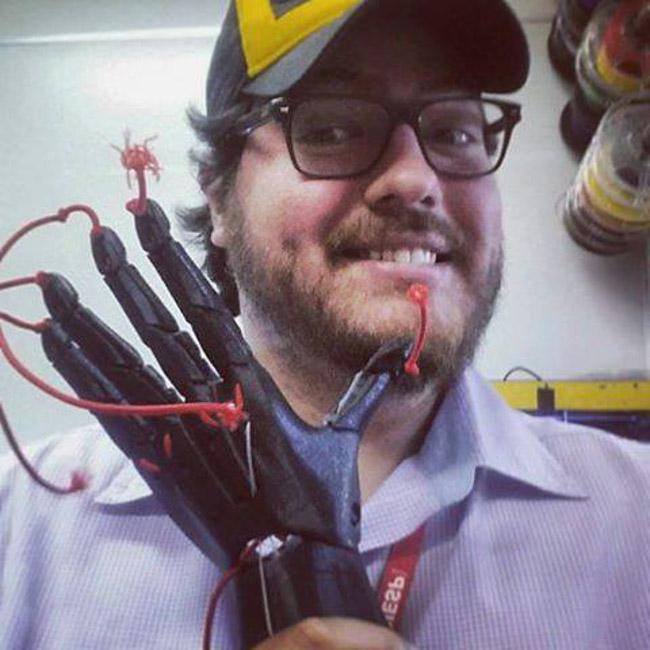 Com impressão 3D, brasileiro cria próteses infantis que resgatam a autoestima das crianças