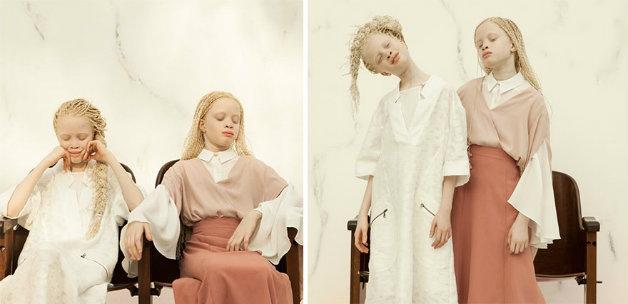 Gêmeas albinas paulistanas fazem sucesso na moda
