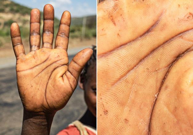 Fotógrafo conta a história de vida das pessoas através da palma de suas mãos 9