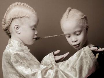 gêmeas albinas